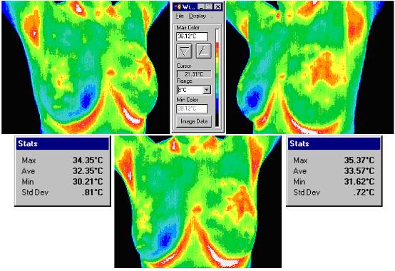 医疗用红外热像仪用于乳腺病检测