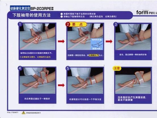 全自動動脈硬化檢測儀