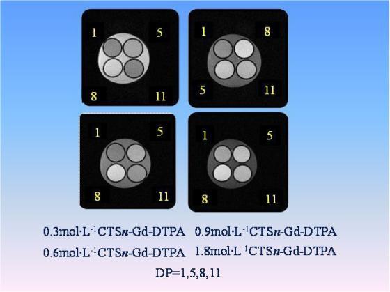 磁共振造影剂成像图