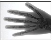 CMOS X射线相机