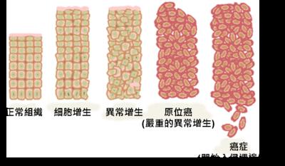 失去正常组织结构和细胞间的