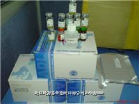 大鼠神经生长因子(rat NGF) 试剂盒 价格 现货13817373946
