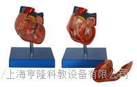 新型自然大心脏解剖模型 KAH/A307B