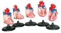 先天性心脏畸形(五部件) KAH5030