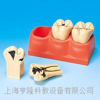 齲齒分解剖模型 KAH/B10009