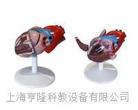 心脏解剖(自然大)(附病态动脉血管) KAH2080-4