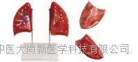 肺解剖模型 SX-458