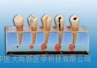牙髓病临床模型