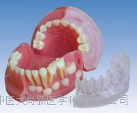 三岁乳恒牙交替解剖模型 SX-621