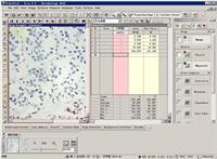 VideoTesT-Size 5.0形态测量学分析系统 VideoTesT-Size 5.0