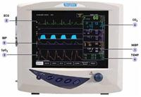 The Advisor® Vital Signs Monitor
