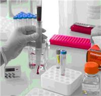 ScreenCell循环稀有细胞分选及核酸提取试剂盒 ScreenCell® MB