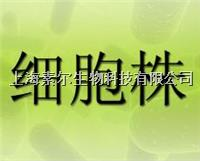 HPMEC细胞,人肺微血管内皮细胞,HPMEC细胞