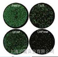 J45.01【人急性T细胞白血病细胞】 人急性T细胞白血病细胞