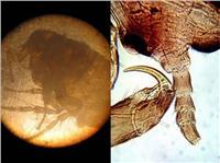 显微镜下的跳蚤