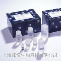 大鼠血管紧张素转化酶(ACE)大鼠ELISA试剂盒报价 48T/96T盒