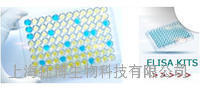 人凝集素样氧化低密度脂蛋白受体1(LOX1)ELISA试剂盒
